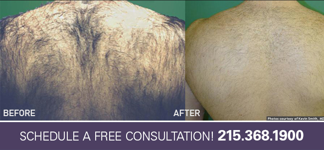 Laser Hair Removal Lansdale