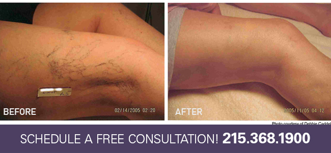 Face and Leg Vein Treatment Lansdale